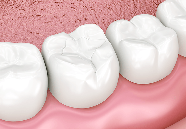 汚れが溜まらないようにする虫歯予防法
