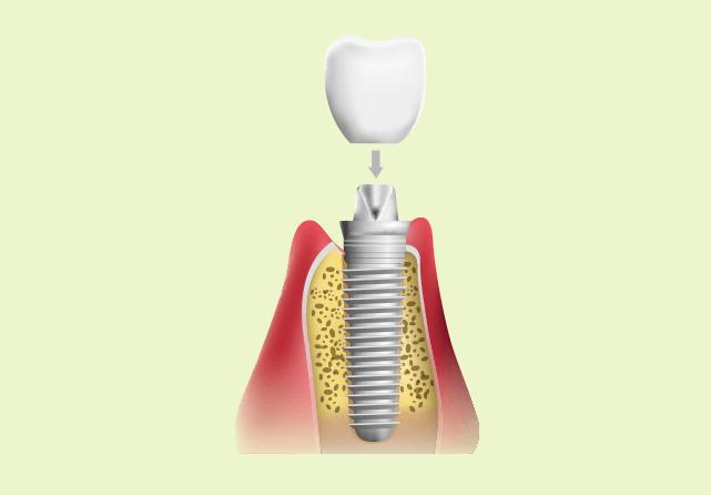 人工の歯の制作・装着