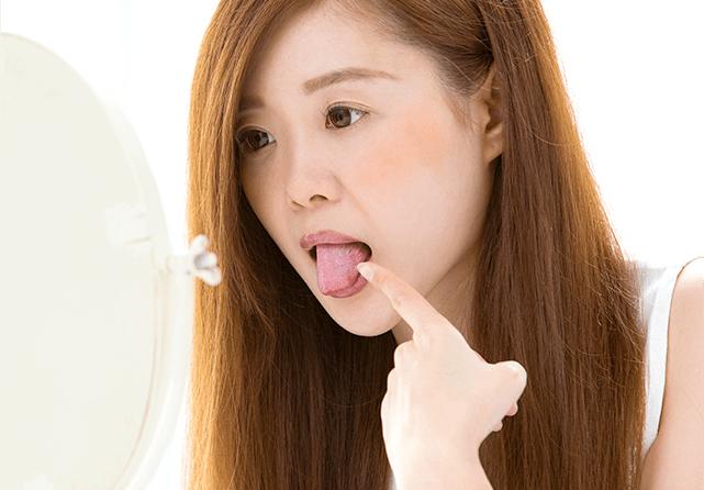口腔内の炎症