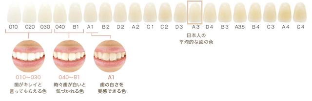 白さの結果にコミットする日本最大の審美歯科専門医院です